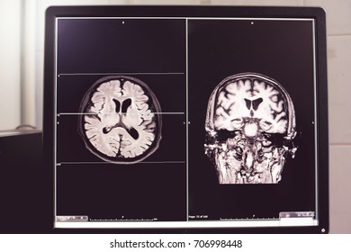 MRI brain of Dementia patient Hippocampal atrophy grade 4 by MTA scale Temporal atrophy