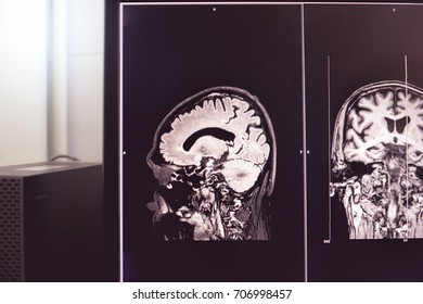 MRI brain of Dementia patient Hippocampal atrophy grade 4 by MTA scale frontal atrophy