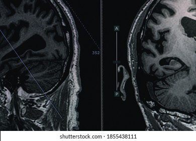 MRI of brain Dementia protocol with Alzheimer's disease  Take a picture from the computer