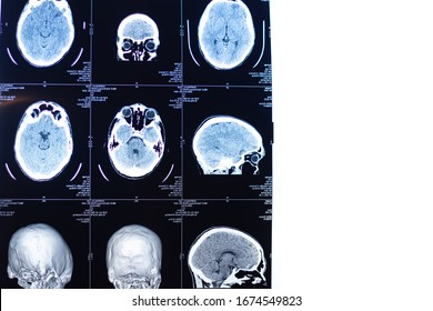 MRI of the brain . Human health. X-ray image. MRI scan or magnetic resonance image of head and brain scan.