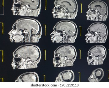 MRI Brain A male 67 year old finding extra-axial dural based mass over right parieto-occipital lobe,Medical healthcare concept.