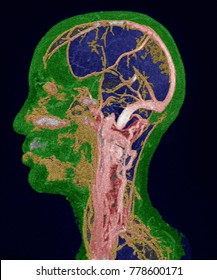MRI of the brain and neck vessels