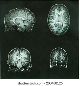 MRI Brain Scan of a pre-teen child's brain