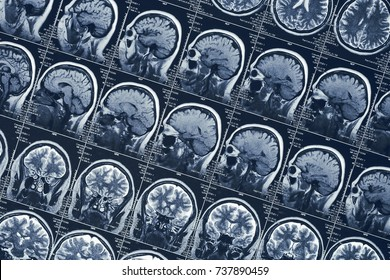 MRI brain scan or x-ray neurology human head skull tomography test, CT scan research