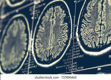 MRI brain scan or x-ray neurology human head skull tomography test. Magnetic resonance tomography, selective focus, toned