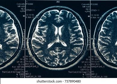 MRI brain scan or x-ray neurology human head skull tomography test, close up brain negative scan