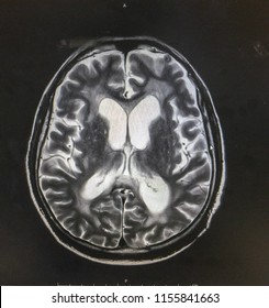 MRI brain showed hydrocephalus with clinical of normal pressure hydrocephalus , ataxia,cognitive decline,incontinence
