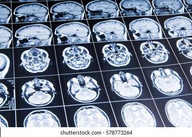 MRI of the brain. snapshot