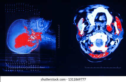 MRI of the brain.X-ray film of the brain computed tomography.