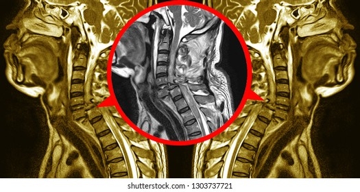 MRI OF CERVICAL SPINE  HISTORY: A 57-year-old male, presented with history of vehicle accident and cervical spine injury with dislocate,Out of focus and blurry when views full solution.medical concept