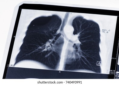 The MRI or CT scan of the lungs. The rupture of the lung. Fluid in the lung. Pneumothorax