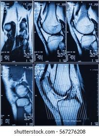 MRI of Human Knee For Medical Diagnosis