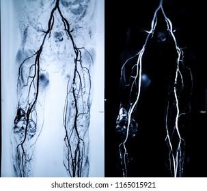 MRI Image Femoral Artary Runoff