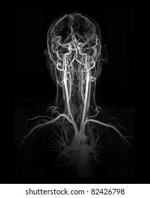 MRI image (MRA) show head and neck artery and vein
