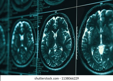 MRI or magnetic resonance image of head and brain scan. Close up view with selective focus, toned