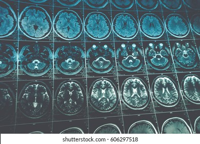 MRI or magnetic resonance image of head and brain scan, toned image