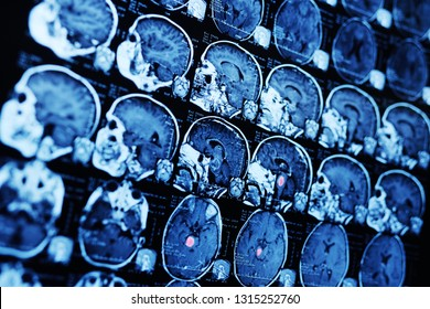 MRI (magnetic resonance image) scan of a patient with a tumor in the brain stem. Neurosurgery, cancer, surgery.