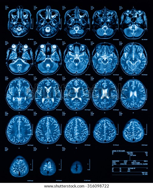 MRI (Magnetic resonance imaging) of the brain, transverse view, T2. (History: A 13 years old boy with fever and alteration of consciousness, was sent to rule out eosinophilic meningitis)