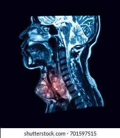 MRI (Magnetic resonance imaging) scan of the neck, showing large neck mass, mocoepidermoid carcinoma, sagittal view