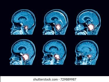 MRI (magnetic resonance) scan of  the brain, sagittal view, case of benign tumor at foramen magnum