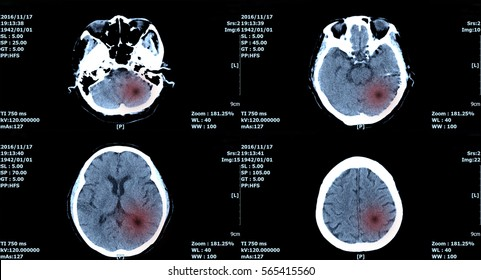 MRI scan brain, ct scan of brain image for diagnosis hemorrhage, tumor.