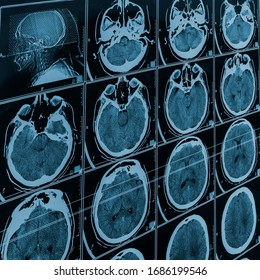 MRI scan of the brain. Magnetic resonance scan of the brain. Medicine, science. Selective focus