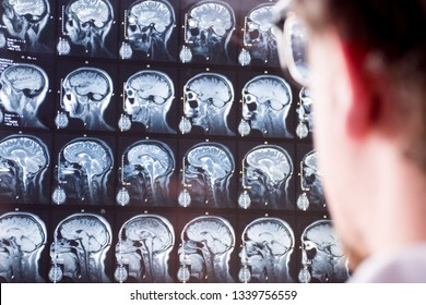 MRI scan of head and brain. Doctor in foreground with blurred silhouette looks at magnetic resonance imaging of brain of patient in background in focus. Concept image in neurology or neurosurgery