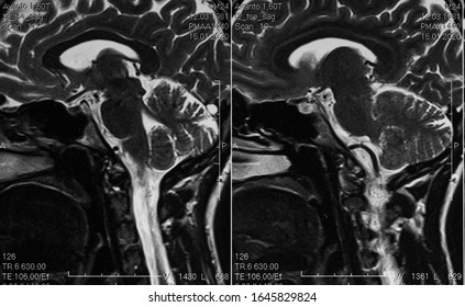 MRI scan of human brain, sagittal view, cerebellum