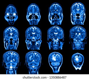 MRI scan image of brain