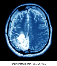 MRI scan image of brain for diagnosis
