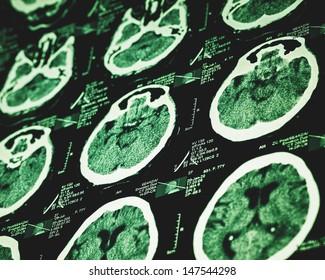 MRI scan, medical pattern
