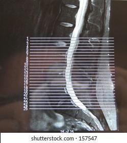 MRI Spine Curve updated shot no glare http://www.shutterstock.com/pic-687666.html