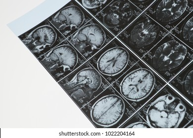 MRI (x ray)  images including: head, brain