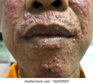 Mehrere erythematöse Molluscum-ähnliche Hautveränderungen im Gesicht bei BEIHILFEN