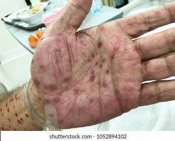 Hiv Rash Pictures Images, Stock Photos & Vectors | Shutterstock