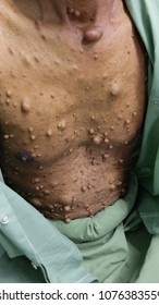 Multiple Neurofibromatosis of the trunk of abdomen.