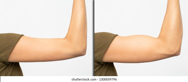 Muscular arm of woman before and after body building workout