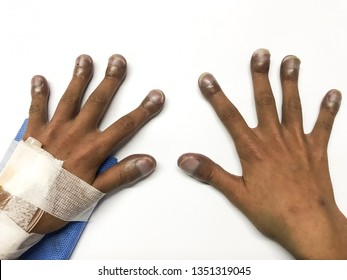 Nail clubbing or Digital clubbing is usually seen in individuals who have coexistent pulmonary or cardiovascular diseases  such as congenital heart disease, lung cancer, congestive heart failure, copd