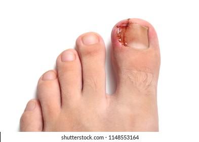 Nail figure, ingrown nail, purulence onychocryptosis Isolated on white.