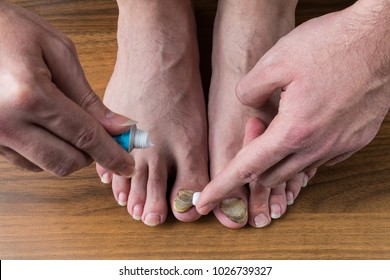 nail fungus care and treatment