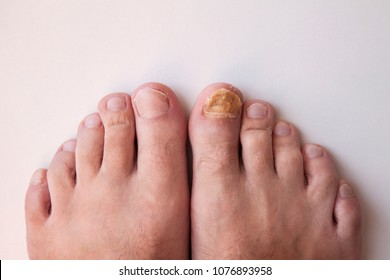 Nail fungus on legs. Nail disease.