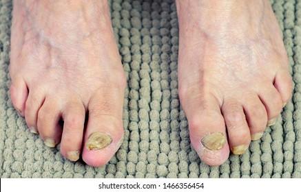 Nail fungus. Nail fungus on legs. Nail disease.Toenail fungus, onychomycosis, foot in front of white background