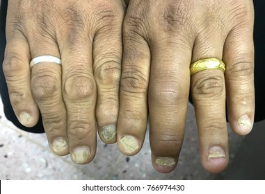 Nail Psoriasis in case HIV co-infection.