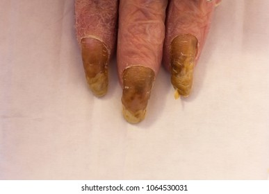 The nails affected by fungus