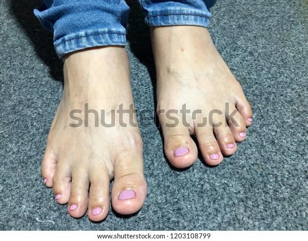 Nails Art Feet Short Pink Matte Stock Photo (Edit Now