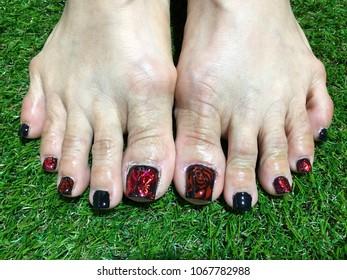 Nails Art Womans Feet Black Nail Stock Photo Edit Now 1067782988