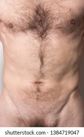 naked adult man with a slim figure and chest hair. concept: stomach and heart problems. the guy with the hernia on his hairy pubes. a man with a tumor on his body before surgery