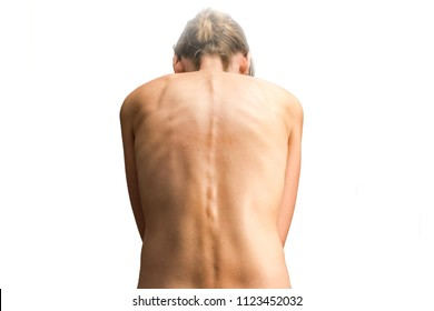 Naked woman with scoliosis as a diagnosis of back pain