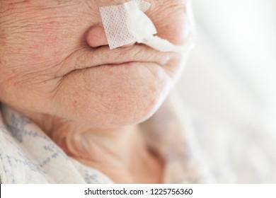 nasogastric tube and elderly woman