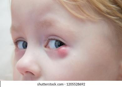 Nasolacrimal Duct Obstruction on Children,Establishing the Diagnosis